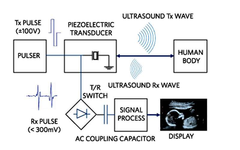 Ultrasound Imaging Gets High-Performance Design - EE Times AsiaEE Times Asia